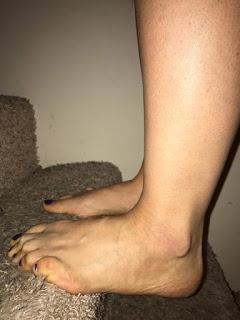 Roller Derby Ankle Strengthening